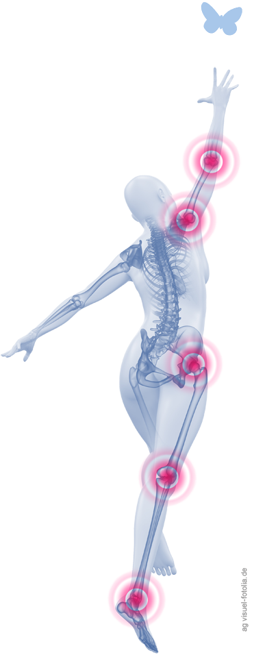 Schmerzen am ganzen Körper – ohne Befund: Die Fibromyalgie